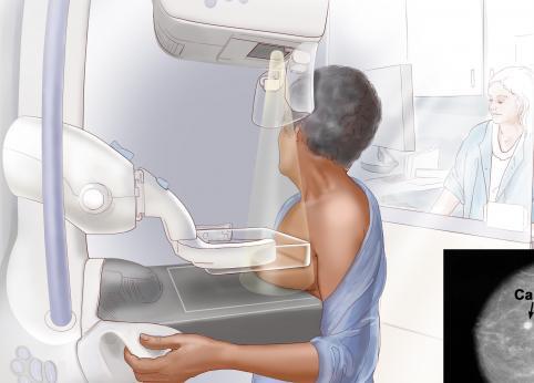چه کسانی باید ماموگرافی انجام دهند؛ فواید و خطرات ماموگرافی