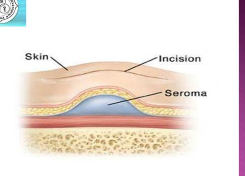 تشکیل سروما،عارضه شایع بعد از انجام جراحی